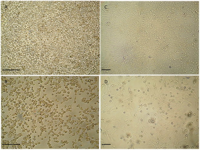 Cytopathic effect in infected and uninfected cell cultures. Cytopathic effects consisting of cell rounding, detachment and culture degeneration were observed in C6/36 and Vero cell lines at day 4 post-ZIKV inoculation, under an inverted microscope (original magnification ×20 in C6/36 and ×10 in Vero cells. Scale bars, 100 μm). ( A ) Uninfected C6/36 cells, ( B ) C6/36 cells inoculated with salivary glands homogenates showing CPE, ( C ) Uninfected Vero cells, ( D ) Vero cells inoculated with salivary glands homogenates showing CPE.