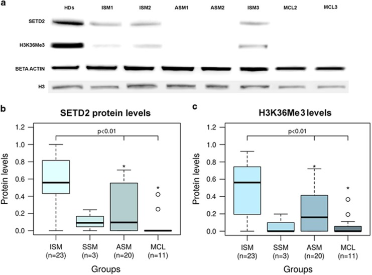 SETD2 protein and H3K36Me3 deficiency in SM. ( a ) representative western blot results for SETD2 protein and H3K36Me3 levels in SM patients as compared to a pool of healthy donors (HDs). One of three independent experiments is shown. ( b and c ) Box and whiskers plots of SETD2 and H3K36Me3 level estimates obtained by densitometric analysis of western blots. Median, interquartile range, minimum, maximum and outliers are indicated. SETD2 and H3K36Me3 signal intensities in single blots obtained from three individual experiments were normalized to those of beta-actin and H3 histone, respectively, and averaged. Normalized SETD2 and H3K36Me3 levels calculated in SM patients were then expressed in comparison to normalized SETD2 and H3K36Me3 levels detected in a pool of HDs, conventionally set to 1. The asterisks indicate that MCL and ASM had significantly lower levels of SETD2 protein ( P