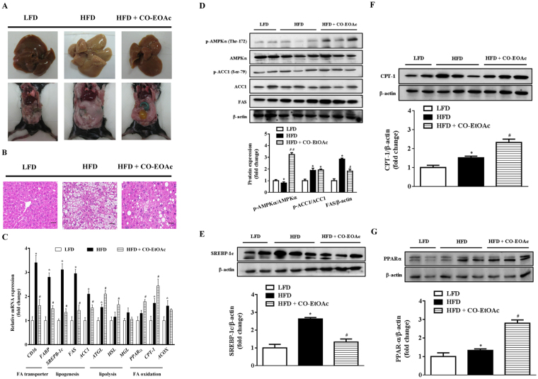 CO-EtOAc attenuates hepatic lipid accumulation in C57BL/6 mice treated with 60% high-fat diet (HFD). C57BL/6 mice were fed a high fat diet (HFD) for 21 weeks and treated with CO-EtOAc in the last 4 weeks. The control group was administered a low-fat diet (LFD). At the end of the experiment, all mice were killed by CO 2 anaesthesia. The liver samples were fixed in 10% formalin for 24 h, embedded in paraffin, sectioned, and stained with haematoxylin and eosin (H E). ( A ) Representative photographs of the liver appearance (upper) and the abdominal fat (lower) of mice among different groups are shown. ( B ) Histological features of the lipid accumulation in the livers of C57BL/6 mice. Representative photographs are shown with 100X magnification. All scale bars indicate 50 μm. ( C ) Total RNAs were extracted using Trizol reagent and mRNA was measured using qRT-PCR. Relative mRNA levels were normalized to the housekeeping gene, r18S. The fold changes relative to the control were calculated using ΔΔCT method for mRNA expression levels of fatty acid transporter genes, CD36 and FABP ; lipogenic genes: SREBP-1c , FAS , and ACC1 ; fatty acid oxidation genes: PPARα, CPT-1 , and ACOX . The levels of protein expression of ( D ) phosphorylated and total AMPKα, phosphorylated and total ACC1, and FAS ( E ) SREBP-1c ( F ) CPT-1 ( G ) PPAR-α were measured by western blot analysis. The intensity of the protein band was normalized against the internal control β-actin. Histograms depict the quantitative analysis of the results and the value for the control group was set as 1. All results are expressed as the mean ± SEM of three independent experiments. * p