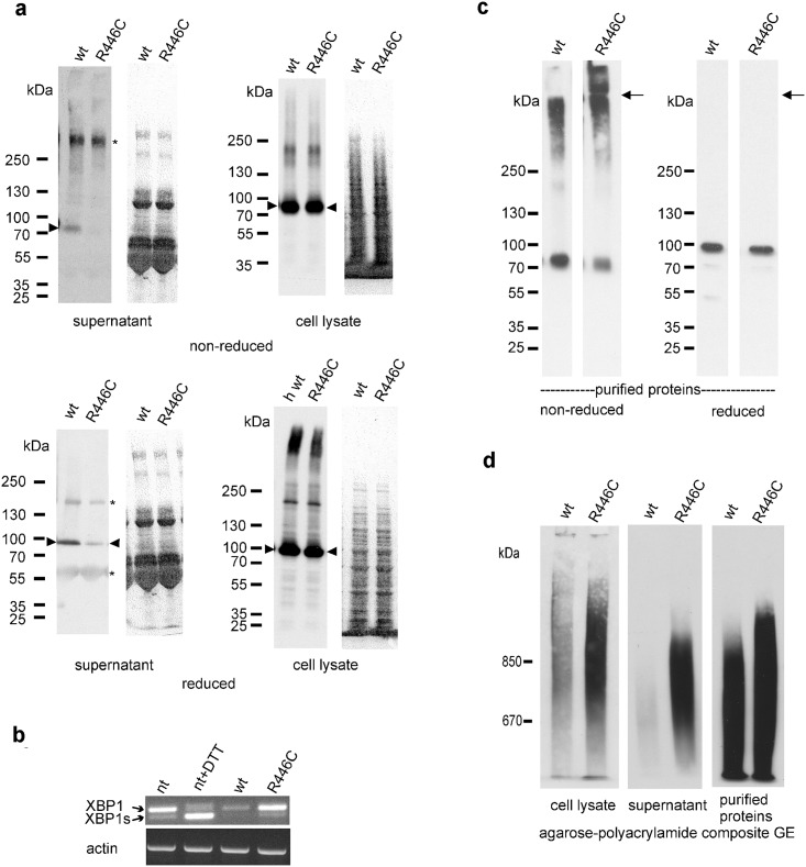 Reduced secretion and intracellular and extracellular aggregation of Arg446Cys VWA2. (a) Cell culture supernatants and cell lysates from wild type (wt) and Arg446Cys VWA2 (R446C) expressing 293EBNA cells were separated by SDS-PAGE under reducing and non-reducing conditions and detected with an antibody against the One-STrEP-tag. Arrowheads indicate monomeric VWA2. On the right, equal loading is demonstrated by Ponceau staining of the membranes. Asterisks indicate artefact bands. (b) cDNA from non transfected (nt), non-transfected ER stress induced (nt+DTT), wt VWA2 transfected (wt) and Arg446Cys VWA2 (R446C) transfected 293EBNA cells was submitted to RT-PCR and the PCR products separated by agarose gel electrophoresis. Arrows indicate the bands for XBP-1 and ER stress induced XBP-1s. Equal loading is demonstrated by actin control RT-PCR shown below. (c) Equal amounts (0.2 μg) of affinity purified wild type (wt) and Arg446Cys VWA2 (R446C) were separated by SDS-PAGE under reducing and non-reducing conditions and detected with an antibody against the C-terminal fragment (P3) of human VWA2. Under non-reducing conditions higher aggregates are seen. Arrows indicate the border between separation and stacking gel. (d) Equal amounts of cell culture supernatants and cell lysates from wild type (wt) and Arg446Cys VWA2 (R446C) expressing 293EBNA cells as in (a) and of affinity purified wild type (wt) and Arg446Cys VWA2 (R446C) as in (b) were separated by agarose-polyacrylamide composite gels under non-reducing conditions and detected with an antibody against the One-STrEP-tag.