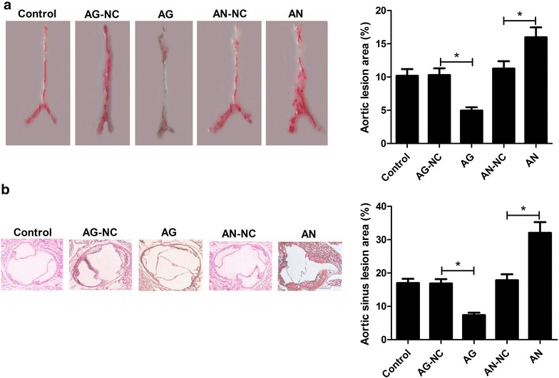 Effects of miR-26a on atherosclerotic lesion in ApoE − / − mice. a Representative Oil-red-O staining of aorta in control, AG, AG-NC, AN, and AN-NC groups are shown. Atherosclerotic lesion area indicates the level of atherogenesis. b Characterization of aortic sinus atherosclerotic lesion area by HE staining in control, AG, AG-NC, AN, and AN-NC groups. * P