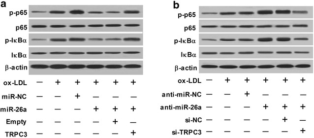 miR-26a overexpression inhibited activation of the nuclear factor-kappa B (NF-κB) pathway by downregulating TRPC3 in ox-LDL-treated HAECs. a HAECs were transfected with miR-26a, miR-NC, miR-26a + Empty, or miR-26a + TRPC3, followed by treatment with 50 nM ox-LDL for 24 h. Then, the protein levels of p65, p-p65, IκBα and p-IκBα in the treated HAECs were detected by western blot. b HAECs were transfected with anti-miR-26a, anti-miR-NC, anti-miR-26a + si-NC, or anti-miR-26a + si-TRPC3, followed by treatment with 50 nM ox-LDL for 24 h. Then, the protein levels of p65, p-p65, IκBα and p-IκBα in the treated HAECs were detected by western blot