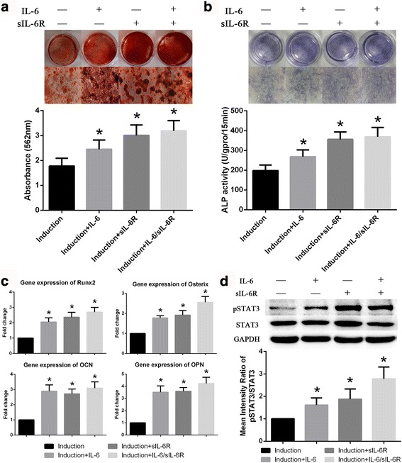 Exogenous IL-6 and sIL-6R promote osteogenic differentiation in BM-MSCs. a Extent of ARS staining in BM-MSCs was clearly increased by exogenous IL-6, sIL-6R or both. b ALP staining and activity of BM-MSCs were noticeably increased by exogenous IL-6 and sIL-6R. c Expression of osteoblastic marker genes in BM-MSCs was also promoted by exogenous IL-6 and sIL-6R. d STAT3 phosphorylation was markedly increased in response to stimulation with exogenous IL-6 and sIL-6R. Data are presented as the means ± SD of 15 samples per group. *Indicates P