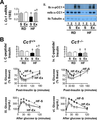 Effect of 4 weeks of exenatide treatment on insulin clearance. Mice were fed an RD or HF diet for 2 months and injected daily with exenatide in the last month. (A) (i) Cc1 +/+ liver lysates were analyzed by <t>qRT‐PCR</t> to measure Ceacam1 mRNA levels normalized to 18S (n = 5/each group in duplicate). Values are expressed as mean ± SE; * P