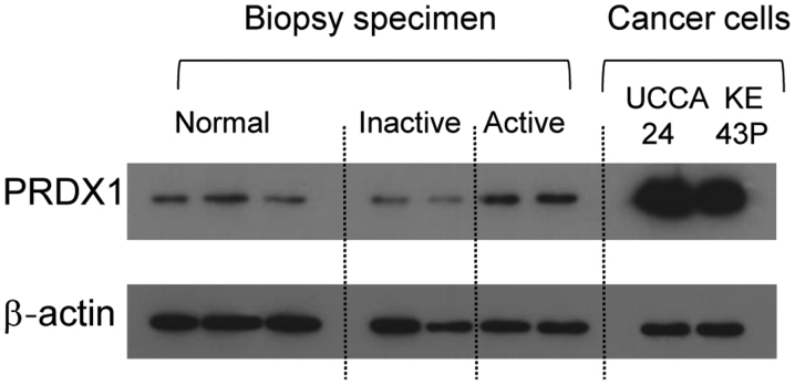 Western blot analysis of PRDX1 expression in protein extracts of sigmoid colon biopsy specimens (normal mucosa, inactive UC, and active UC) and colon cancer cell lysates. Two active UC samples showed higher PRDX1 expression than that in normal mucosa and inactive UC. Colon cancer cell lysates (UCCA-24: UC-associated colon cancer cells, KE43P: Sporadic colon cancer cells) also expressed PRDX1. β-actin expression was used as a control.