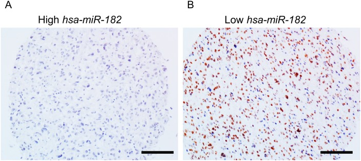 <t>PPP1R1C</t> and miR-182 are inversely correlated in patients with GBM Representative immunohistochemistry images showing PPP1R1C expression in glioblastoma tissue with differential expression levels of miR-182 expression as determined by qRT-PCR. Brown staining represents positive PPP1R1C expression. Scale bar – 40 μm.