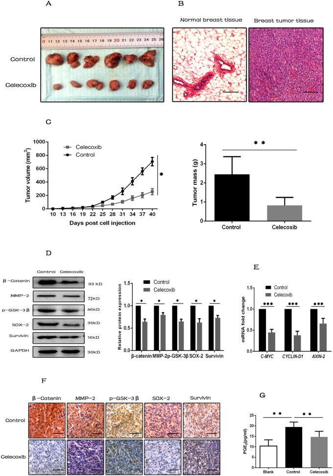 Celecoxib inhibits tumorigenesis in vivo by inhibiting the synthesis of PGE 2 and down-regulating the Wnt pathway activity (A) Photographs of excised tumors from two groups of NOD/SCID mice (N = 6 per group). (B) Tumor tissues were confirmed by H E staining, and normal breast tissues were used as negative control (magnification, ×100). (C) Tumor growth was measured with a caliper every three days, and tumors were weighted when the mice were sacrificed. (D and E) Proteins and RNAs were extracted from tumor tissues. Wnt pathway components (β-catenin, p-GSK-3β) and target genes ( MMP-2 , Survivin , AXIN-2 , CYCLIN-D1 and C-MYC ), and CSC marker (SOX-2) were evaluated by western-blot or RT-PCR. (F) IHC staining for Wnt pathway components, target genes and CSC marker (SOX-2) in sections of tumor tissues (magnification ×200). (G) PGE 2 levels in serum of the assayed animals were evaluated by PGE 2 ELISA kit. Scale bar = 100 μm. Data are presented as mean ± SD. * , P