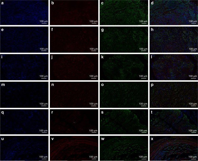 Triple immunofluorescent staining of S100 and MBP at 18 weeks post operatively. S100 (green), MBP (red), and nuclei (blue) were exhibited from different groups respectively. a – d SC-loaded PDA/RGD-SG/PCL. e – h SC-loaded PDA/RGD-MG/PCL. i – l PDA/RGD-SG/PCL. m – p PDA/RGD-MG/PCL. q – t PDA/RGD-PCL. u – x Autograft. The scale bar is 100 μm