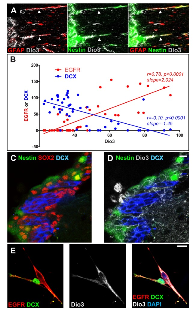 Expression of the inactivating deiodinase, Dio3, excludes TH signalling from NSC, progenitors and oligodendrocyte progenitors. ( A ) The SVZ from nestin:GFP adult mice was double-stained with anti-GFAP (red) and anti-Dio3 (grey) antibodies. Note that Dio3 is highly expressed in the radial process of Nestin + and GFAP + NSC (arrowheads). ( B ) Correlations between the expression levels of Dio3 (black, y axis) and EGFR (red, x axis) versus DCX (blue, x axis) expression levels. ( C and D ) Coronal sections across the lateral ventricle of nestin:GFP adult mouse were stained with anti-SOX2 (red, C ), anti-DCX (blue, C and D ) and anti-Dio3 (grey, D ). Note that Dio3 shows much lower expression in DCX + neuroblasts but is highly expressed in Nestin (GFP + ) and SOX2 + progenitors. ( E ) Immunolabelling for EGFR (red), DCX (green) and Dio3 (grey) was performed on cells dissociated from neurospheres. Dio3 is strongly expressed in EGFR + progenitors and much lower expressed in DCX + neuroblasts.