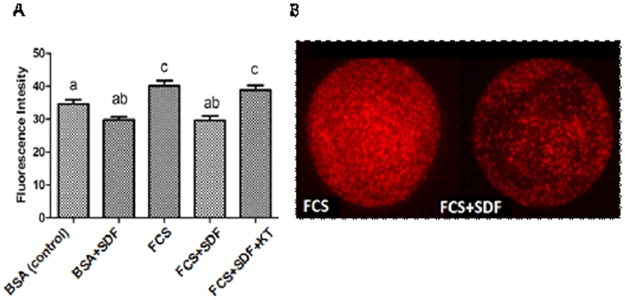 Total amount of lipids in bovine oocytes matured in vitro for 24 h. A) Lipid content in oocytes with different protein sources (0.4% BSA or 10% FCS) with or without phosphodiesterase 5 inhibitor (10 −5 M SDF) associated or not with PKG inhibitor (10 -5 M KT5823). B) Representative image (20x magnification) of Nile Red stained FCS and FCS + SDF treated oocytes. The control group consists of COCs matured with 0.4% BSA without addition of FCS or SDF. Data are expressed as the mean ± SEM of six replicates. Values with different superscript letters differ significantly (p