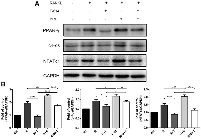 Iguratimod blocks PPAR-γ/c-Fos signaling. Proteins were extracted, and the protein expression levels of PPAR-γ, c-Fos and <t>NFATc1</t> were detected (A) and quantified (B). The experiments were repeated 3 times independently. Data are presented as means ± SD. *P
