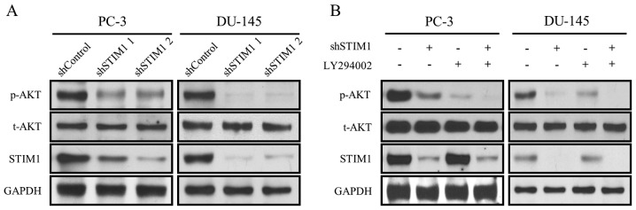 STIM1 knockdown inactivates PI3K-Akt. (A) Two independent shSTIM1s and shControl were transfected into PC-3 and DU-145 cells for 3 days and whole cell extracts were isolated. The expression of p-Akt, t-Akt and STIM1 was determined by western blotting. (B) shSTIM1 and shControl were transfected into PC-3 and DU-145 cells for 2 days, and then the culture medium was replaced with fresh medium with/without 10 µM LY294002. Protein was harvested after 24 h of treatment and the expression of p-Akt, t-Akt and STIM1 was detected by western blotting. GAPDH was used as a loading control. STIM1, stromal-interacting molecule 1.
