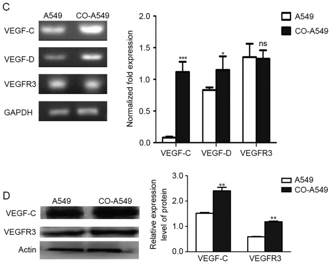 Expression levels of VEGF-C, VEGF-D, and VEGFR3 in the lung adenocarcinoma A549 cell line. (A) RT-PCR evaluations of VEGF-C mRNA, VEGF-D mRNA and VEGFR3 mRNA in co-cultured M2 macrophages (CO-M2) and co-cultured A549 cells (CO-A549) are presented. (B) IHC demonstrating that VEGFR3 expression in human lung adenocarcinoma is primarily found in tumor cells than in stromal and adjacent cells. VEGFR3 expression was also found in blood vessels. Scale bars, 20 µm. (C) Semi-quantitative RT-PCR and qRT-PCR evaluation of VEGF-C mRNA, VEGF-D mRNA and VEGFR3 mRNA are presented. The co-cultured A549 cells (CO-A549) had a higher expression level of VEGF-C mRNA and VEGF-D mRNA than that of the A549 cells alone. (D) Western blot analysis confirmed a high protein expression of VEGF-C and VEGFR3 in CO-A549 cells. *P