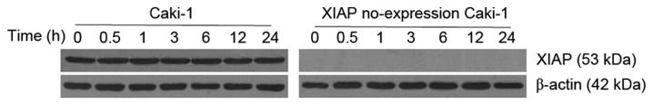 XIAP protein expression levels following Etoposide treatment, as assessed by western blot analysis. XIAP, X-linked inhibitor of apoptosis.