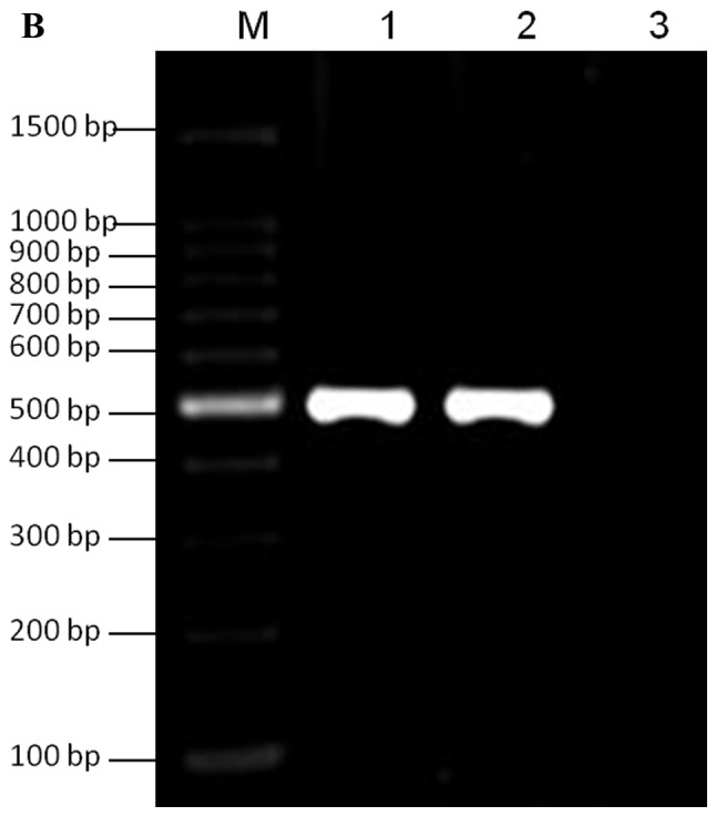 PCR amplification of galK and FKBP. (A) Lane M, 100 bp DNA ladder; lane 1, PCR amplification of VZV ORF4 galK cassette; lane 2, PCR amplification of VZV ORF48 galK cassette; lane 3, negative control. (B) Lane M, 100 bp DNA ladder; lane 1, PCR amplification of VZVORF4 FKBP cassette; lane 2, PCR amplification of VZV ORF48 FKBP cassette; lane 3, negative control. FKBP, FK506 binding protein; galK, galactokinase; ORF, open reading frame; PCR, polymerase chain reaction; VZV, varicella-zoster virus.