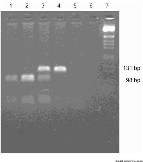 Detection of the G13964C variant by PCR-RFLP assay. The C→G nucleotide substitution creates a Hha I site, and the G allele is detected by Hha I digestion of the 131-bp product to 98-bp and 33-bp products (the 33-bp product is not adequately resolved on this gel). Lanes 1 and 2, GG; lane 3, CG; lane 4, CC; lanes 5 and 6, no template control; and lane 7, BRL 1-kb ladder size marker.