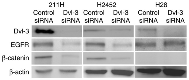 Downregulation of Dvl-3 expression in mesothelioma cells using Dvl-3 siRNA. Western blot analysis revealed that expression of Dvl-3 was downregulated in 211H, H2452 and H28 cells after 48 h of transfection with Dvl-3 siRNA, compared with cells transfected with control siRNA. 211H and H2452 cells exhibited expression of EGFR and β-catenin, whereas H28 exhibited no β-catenin expression due to homozygous deletion of the β-catenin gene. β-actin served as a loading control. Dvl-3, dishevelled-3; siRNA, small interfering RNA; EGFR, epidermal growth factor receptor.