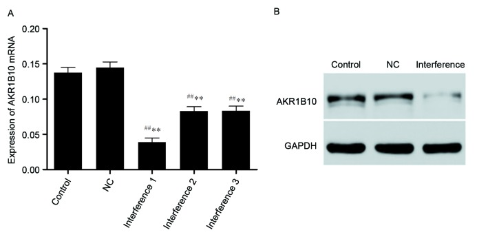 <t>AKR1B10</t> expression at (A) <t>mRNA</t> and (B) protein levels in A549 cells following interference. AKR1B10 mRNA expressions of the blank control group, the negative control group (NC) and the interference group were 0.137±0.008, 0.144±0.08 and 0.039±0.006, respectively. ## P