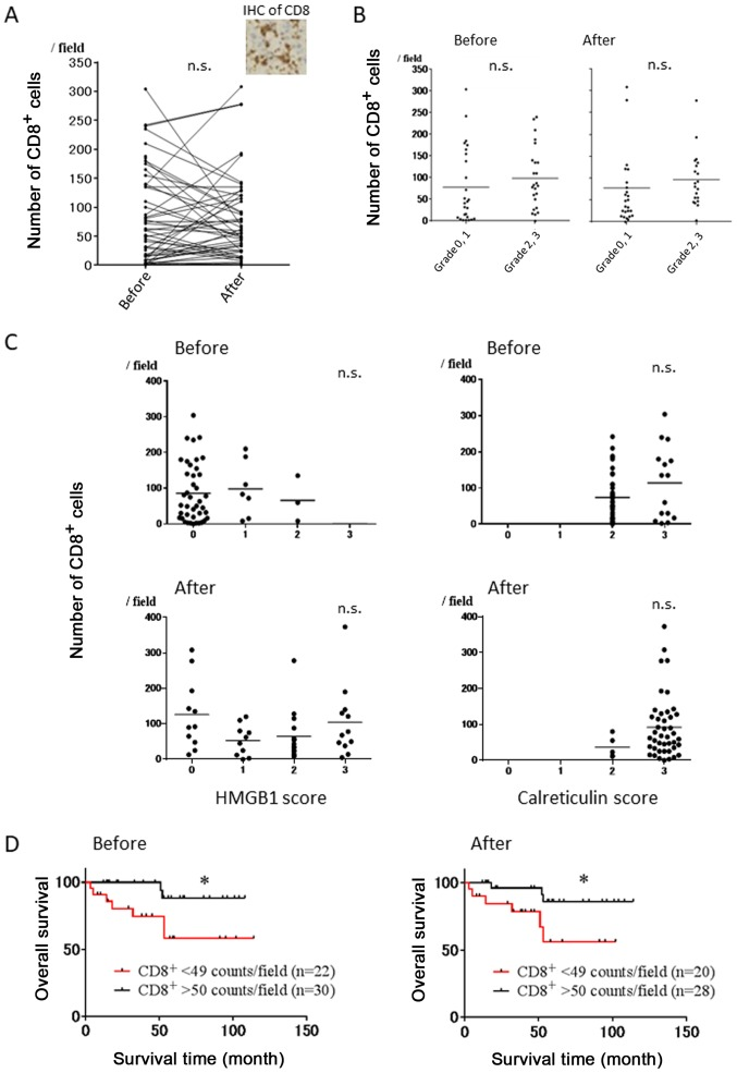 Correlation of the number of <t>CD8</t> + T cells before and after NAC with the HMGB1 and calreticulin score, and patient survival in breast cancer patients. (A) Evaluation of the number of CD8 + T cells before and after NAC. Representative IHC of CD8 is shown. (B) Evaluation of the number of CD8 + T cells before and after NAC in pathological response. (C) Correlation of the HMGB1/calreticulin score with the number of CD8 + T cells before and after NAC. (D) Correlation of the degree of infiltrating CD8 + T cells before and after NAC with clinical outcomes. *p