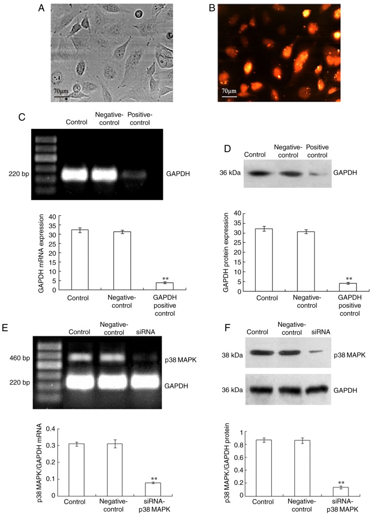 Silencing of p38 MAPK in LoVo cells. LoVo cells were transfected with siRNA- p38 MAPK (12.5 nmol/l), the negative control siRNA and the GAPDH positive control siRNA using Lipofectamine RNAiMAX. In the presence of Block-iT Alexa Fluor Red Fluorescent Control for 48 h, the LoVo cells were exposed to red light irradiation (53.7 J/cm 2 ), incubated for 3 h and then, the transfected cells were observed using (A) an inverted microscope and (B) a fluorescence microscope. Following transfection, the expression levels of p38 MAPK mRNA and p38 MAPK protein were analyzed using (C and E) reverse transcription-PCR and (D and F) immunoblot assay, respectively. The LoVo cells were treated with Lipofectamine RNAiMAX only as the control treatment. GAPDH was used as an internal control. The values presented are representative of three independent experiments (mean ± standard deviation; **P