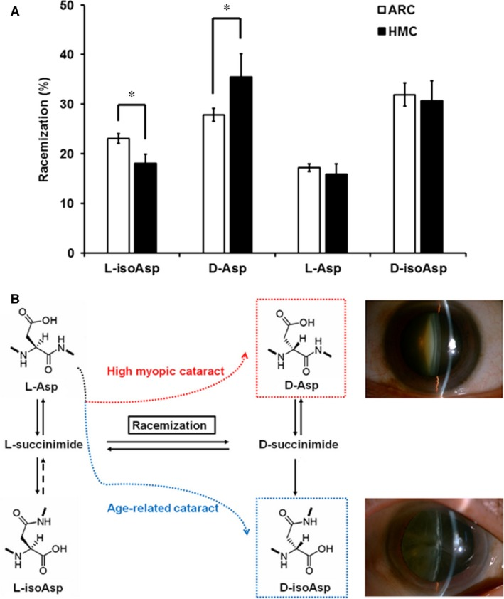 ( A ) Bar diagram showing the amount of Asp 58 racemization in αA‐crystallin of age‐related cataract ( ARC ) and high myopic cataract ( HMC ) lenses. Compared with ARC lenses, HMC lenses showed a significant decrease in the amount of l ‐isoAsp 58 ( P