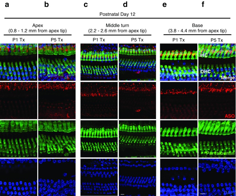 Localization of ASOs in auditory hair cells at P12 after systemic treatment in Ush1c mice . Immunofluorescent labeling of ASO-29 (red) in HCs (green) at the a , b apex, c , d middle turn, and e , f base at P12 after ASO treatment at P1 or P5. Distance from the apex tip is indicated. Scale bars indicate 10 μm. IHC, inner hair cell; OHC, outer hair cell; ASO, antisense oligonucleotide