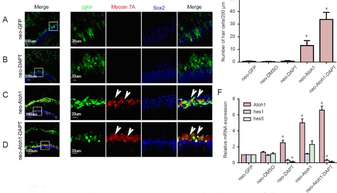 DAPT enhances Atoh1 activity to generate more new hair cells in situ . Representative images of myosin7A and Sox2 staining and immunofluorescence were observed using a Zeiss confocal microscope. Neomycin (1.5 mM) was applied to destroy almost all of the normal hair cells and Ad5-GFP or Ad5-GFP-Atoh1 was applied after 48 hours of culture in 10 % FBS medium. (A) Cochlear explants were infected by Ad5-GFP after neomycin insult. No myosin 7A-immunoreactive cells were found in the sensory epithelium. (B) Cochlear explants were treated with Ad5-GFP and DAPT . No myosin 7A-immunoreactive cells were detected in the sensory epithelium. (C) Cochlear explants were infected by Ad5-GFP-Atoh1 after neomycin insult. Several GFP/myosin 7A double immunoreactive cells were observed in the sensory epithelium. (D) Cochlear explants with concurrent application of Ad5-GFP-Atoh1 and DAPT after neomycin insult. Numerous GFP/myosin 7A double immunoreactive cells were found in the sensory epithelium. (A1–D1) Magnified view from A–D. (E) The number of new hair cells in situ in the different groups ( n = 10). (F) Quantitative polymerase chain reaction results for the different groups; * P