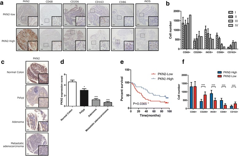 Overexpression of PKN2 is associated with better clinical outcome and high M1 content in human colon cancer. a The protein expression of PKN2, CD68, CD206, CD86, CD163 and iNOS in a human colon cancer tissue array was detected by immunohistochemistry staining. Representative photos are shown (100X and 400X). b Number of CD68 + , CD206 + , CD86 + , CD163 + and iNOS + cells per low field in tissues from colon cancer patients at different stages. c PKN2 expression in normal colon tissue, polyp, adenoma and metastatic adenocarcinoma was measured using IHC. PKN2 expression scores were shown in ( d ). *, P