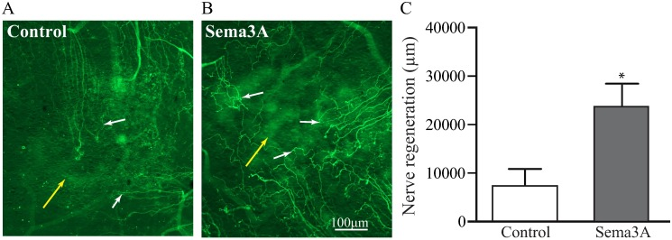 Sema3A induce nerve regeneration in injured corneas. The neuronal promoting effects of Sema3A were tested on thy1-YFP mice subjected to superficial corneal epithelial debridement. The debridement of the epithelium also removes the sub basal nerve plexus without affecting the cornea nerves in the stroma. Insertion of an intrastromal pellet containing Sema3A or vehicle (see Material and methods ) allows for the slow release into the cornea. (A ) Pellets containing vehicle (PBS) induced a discrete growth of sub basal nerves into the injured area. (B) However, addition of Sema3A induced faster regeneration of the superficial corneal nerves and higher nerve density was observed. (C) Quantification of nerve regeneration in the corneal injured area shows that Sema3A induced 3 folds higher nerve regeneration than control mice. White arrows = superficial nerves, yellow arrows = pellet. Values represent mean ± SEM, experiments were performed in triplicate, n = 5 per treatment, * indicates p