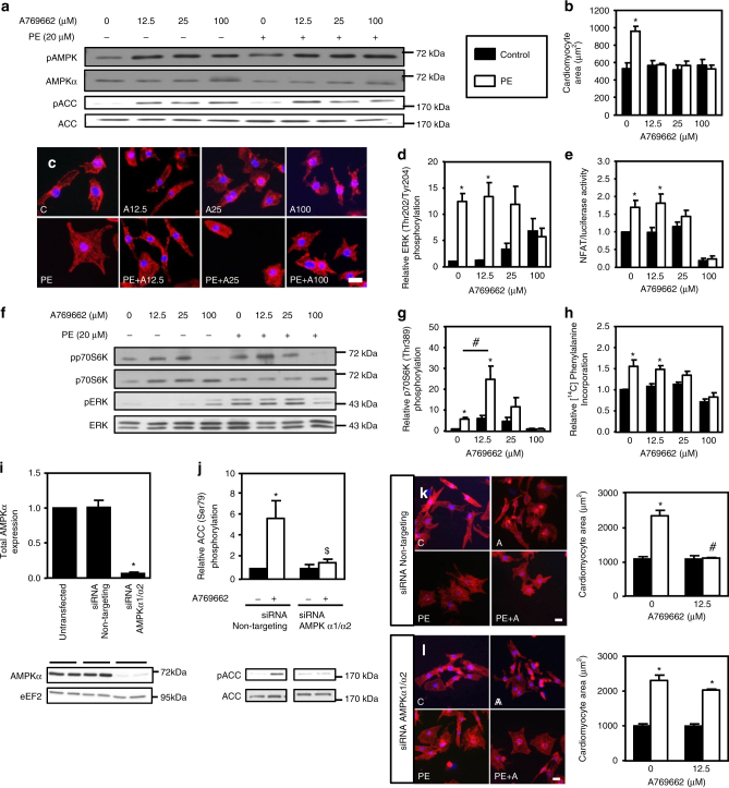 A769662 prevents NRVM hypertrophy. a – h <t>NRVMs</t> were treated with (open bars) or without (solid bars) phenylephrine (PE, 20 µM) in the presence or absence of increasing concentration of A769662 (from 12.5 to 100 µM) for 24 h except for ERK1/2 phosphorylation which has been evaluated after 1 h. a Representative immunoblot of AMPK Thr172 and ACC Ser79 phosphorylation. b , c Representative images and quantification of cardiomyocyte area evaluated after α-actinin immunostaining. Scale bar, 20 µm. N = 3. d Quantification of ERK Thr202/Tyr204 phosphorylation. N = 3. e Evaluation of NFAT transcriptional activity by luciferase activity. N = 3. f Representative immunoblots of p70S6K Thr389 and ERK Thr202/Tyr204 phosphorylation. g Quantification of p70S6K Thr389 phosphorylation. N = 4. h Amino acids incorporation into proteins measured by [ 14 C]-phenylalanine incorporation. N = 3. i – l NRVMs were transfected with control non-targeting <t>siRNA</t> or AMPKα1/α2 siRNA (50 nM) for 66 h. Then, NRVMs were treated with (open bars) or without (solid bars) phenylephrine (PE, 20 μM) in the presence or absence of A769662 (12.5 μM) for 24 h. i Representative immunoblot and quantification of total AMPKα. N = 3. j Representative immunoblot and quantification of ACC Ser79 phosphorylation. N = 3. k Representative images and quantification of cardiomyocyte area evaluated after α-actinin immunostaining of NRVMs transfected with non-targeting siRNA. Scale bar, 20 µm. N = 3. l Representative images and quantification of cardiomyocyte area evaluated after α-actinin immunostaining of NRVMs transfected with AMPKα1/α2 siRNA. Scale bar, 20 µm. N = 3. Data in ( a – l ) are mean ± s.e.m. The data were analyzed using One-way ANOVA followed by Bonferroni post-test in ( i ) and Two-way ANOVA followed by Bonferroni post-test in ( b , d , e , g , h , and j – l ). * p