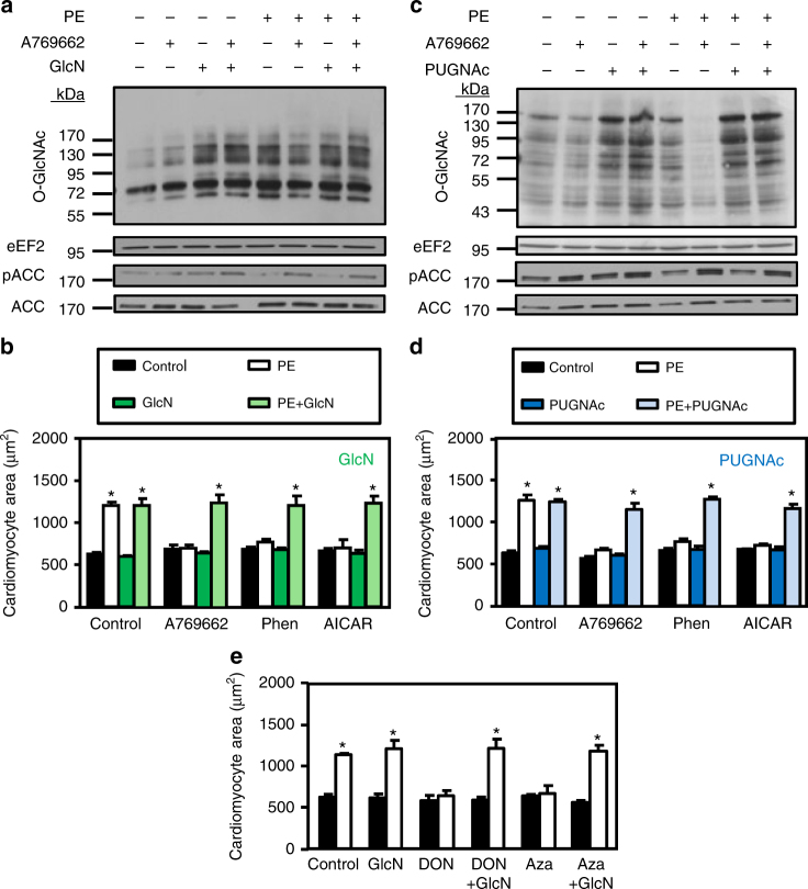 Glucosamine or PUGNAc prevents the anti-hypertrophic action of AMPK. a – d NRVMs were treated with (open bars) or without (solid bars) phenylephrine (PE, 20 µM) in the presence or absence of A769662 (12.5 µM), phenformin (phen, 0.03 mM), AICAr (0.25 mM), PUGNAc (50 µM) and/or glucosamine (GlcN, 5 mM) for 24 h. a Representative immunoblot of protein O-GlcNAcylation levels and ACC Ser79 phosphorylation in GlcN experiments. b Effect of GlcN on the anti-hypertrophic action of AMPK activators. N = 3. c Representative immunoblot of protein O-GlcNAcylation levels and ACC Ser79 phosphorylation in PUGNAc experiments. d Effect of PUGNAc on the anti-hypertrophic action of AMPK activators. N = 3. e Quantification of cardiomyocyte area of NRVMs treated with (open bars) or without (solid bars) phenylephrine (PE, 20 µM) in the presence or not of Azaserine (Aza, 5 µM), DON (20 µM) and/or glucosamine (GlcN, 5 mM) for 24 h. N = 3. Data in ( b , d and e ) are mean ± s.e.m. The data were analyzed using Two-way ANOVA followed by Bonferroni post-test in ( b , d and e ). * p