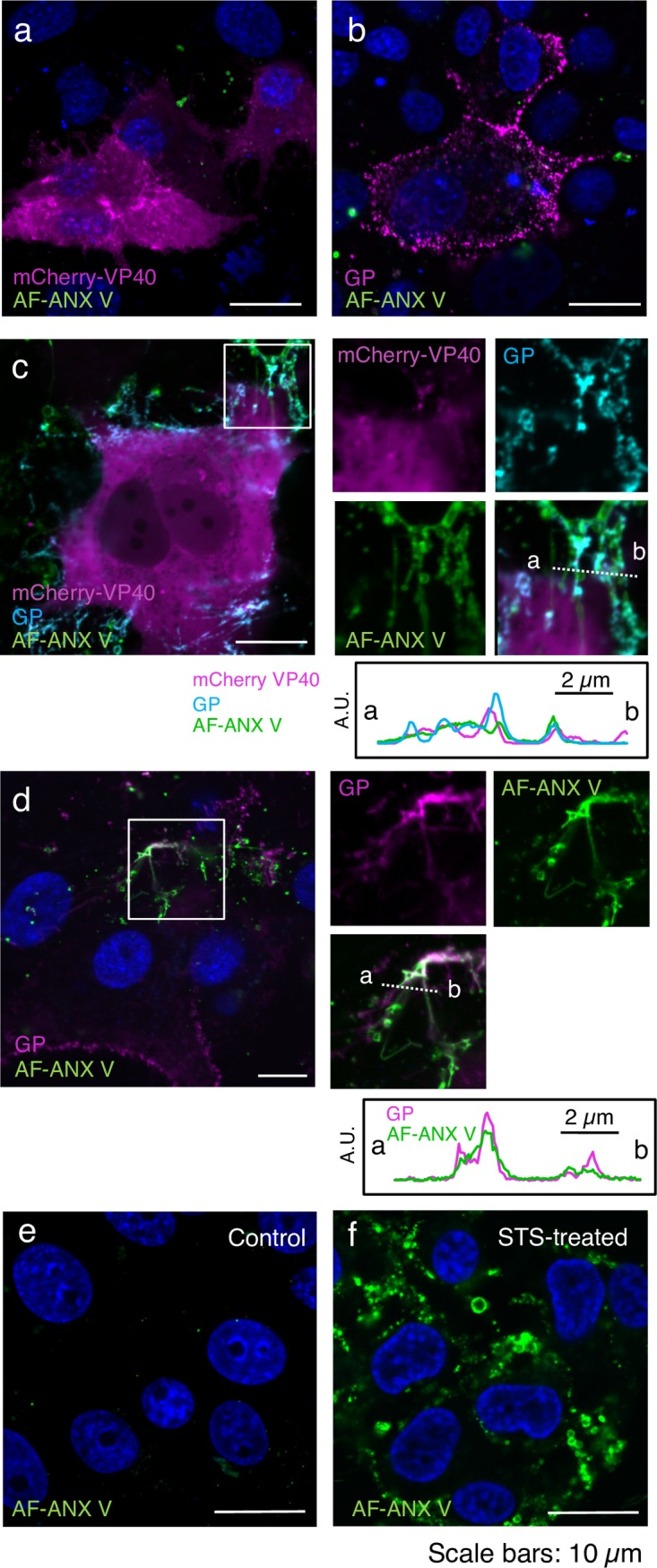 Distribution of extracellular PS in cells expressing EBOV proteins. Vero-E6 cells grown on <t>35-mm</t> glass bottom dishes were transfected with the expression plasmids of mCherry-VP40 and wtVP40 at a ratio of 1:5 (a), GP alone (b), mCherry-VP40 and wtVP40 with GP (c), or wtVP40 and GP (d). At 48 h.p.t., the cells were harvested followed by AF-ANX V staining. For detection of GP, the cells were incubated in the medium containing the anti-GP antibody, followed by incubation with Alexa Fluor 647-conjugated secondary antibody. After being washed with medium and ANX V binging buffer, the cells were treated with AF-ANX V. After washing again, the AF-ANX V signal (green) and EBOV proteins were observed by using a confocal microscope. Individual viral proteins are shown in magenta (a, b, and d). In panel (c), mCherry-VP40 and GP are shown in magenta and cyan, respectively. As a control, a backbone plasmid was transfected (e). Panel (f) represents Vero-E6 cells treated with 1 μM STS for 6 h. The nuclei (blue) were counterstained with Hoechst 33342. Insets show the boxed areas. The plots indicate the individual fluorescence intensity along each of the corresponding lines. A.U.; arbitrary unit. Scale bars in the large panels: 10 μm.