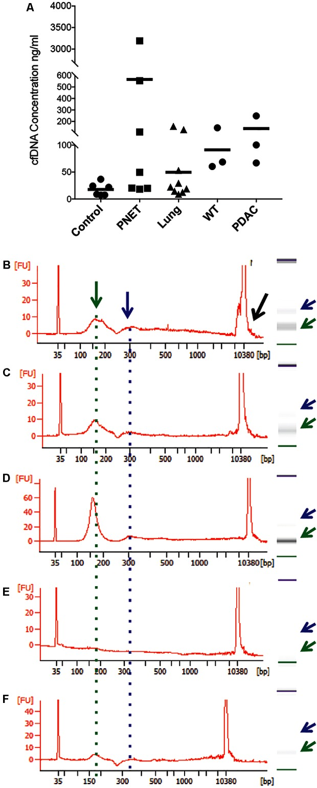 Representative bioanalyzer profiles of cfDNA. (A) The concentration of cfDNA per ml of plasma (human control and lung cancer and mice) or serum (human PNET) is shown for each of the samples analyzed. The horizontal bar indicates the average values for each sample set. (B) Healthy human control #6, (C) PNET patient #4, (D) lung cancer patient #9, (E) WT mouse #1, and (F) PDAC mouse #3. A peak with the highest DNA amount was detected around 160 bp (green arrow and dotted line). Secondary peaks at ∼320 bp (blue arrow and dotted line) were visible in all samples except the WT mouse control. Contaminating high molecular weight DNA was present in some samples (black arrow in B ).