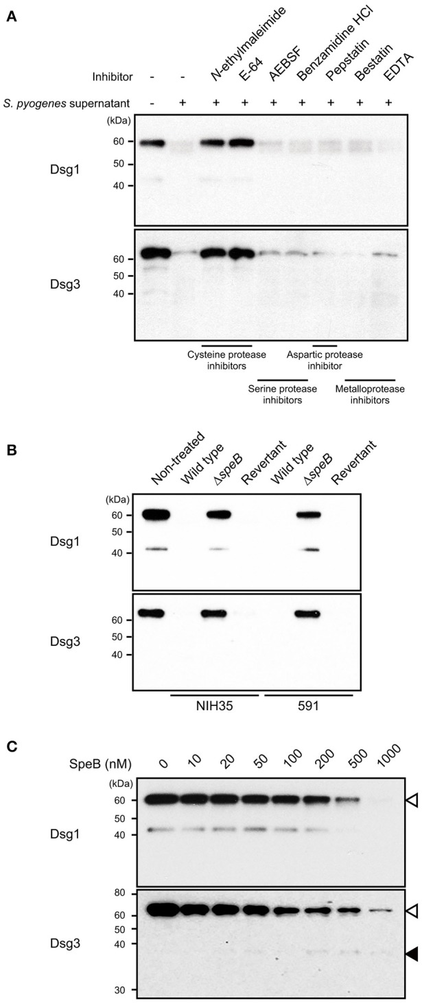 SpeB is a bacterial determinant for cleavage of desmogleins. (A) Culture supernatant from S. pyogenes strain 591 was pretreated with various types of protease inhibitors at room temperature for 30 min, then incubated with <t>Dsg1</t> or Dsg3 recombinant protein at 37°C for 3 h. (B) Recombinant desmogleins were separately treated with culture supernatants from S. pyogenes strains at 37°C for 3 h. An in-frame speB deletion mutant and its revertant strain with a background of NIH35 or 591 were employed for analysis. (C) Dsg1 and Dsg3 recombinant proteins were separately incubated with various concentrations of recombinant SpeB at 37°C for 3 h, then cleavage of desmogleins was detected by western blot analysis. White and black arrowheads indicate the full-length band and cleavage fragment, respectively.