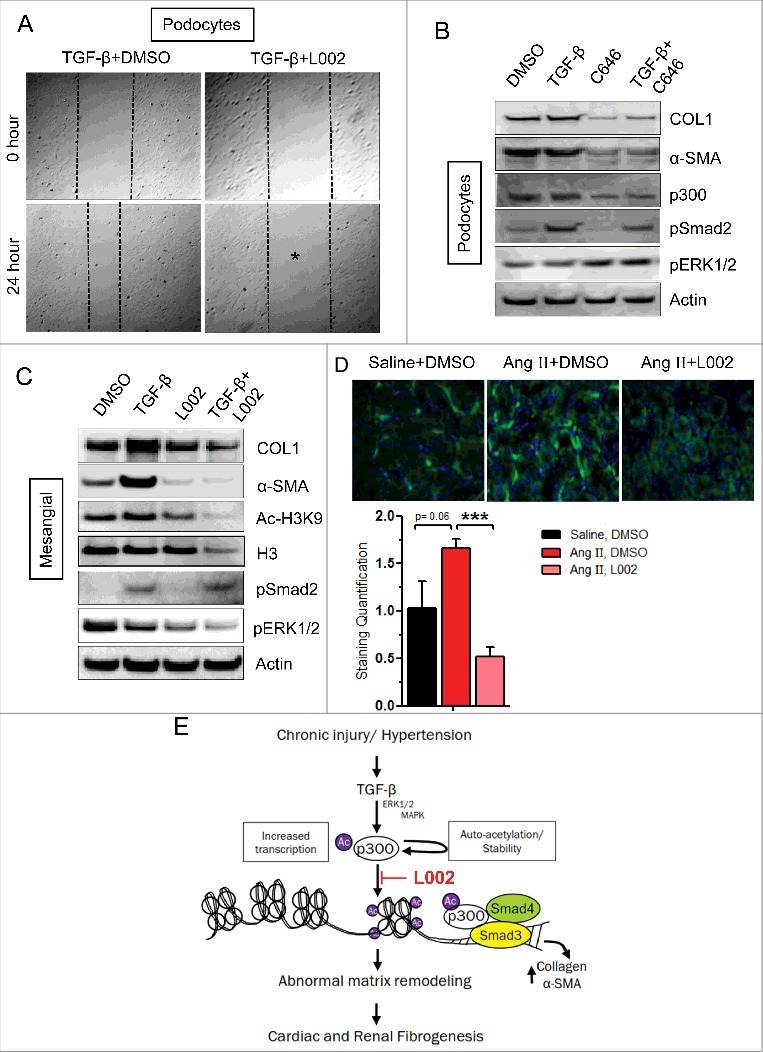 L002 reduces TGF-β-induced pro-fibrogenic responses in renal cells, and mechanistic insights. (A) For migration assay, podocytes were pretreated in triplicate with L002 or DMSO for 1 hour. Then scratch wounds were made in monolayer cultures, followed by TGF-β treatment for 24 h. Photographs were taken at 0 hour and 24 hours after treatment. (B-C) Cultures of human (proliferating) podocytes or mesangial cells were treated in triplicate with L002/ C646 or DMSO in the presence or absence of TGF-β. Total protein was isolated, pooled and processed for Western blotting. Experiments were repeated twice. (D) Effect of L002 on p300 levels. Renal sections from saline, Ang II and Ang II, L002 groups were immuno-stained with anti-p300 antibody and quantified. Saline (n = 3, 12–15 fields); Ang II (n = 5, 20–25 fields); Ang II, L002 (n = 5, 20–25 fields). Data represented as mean ± SEM. ***p