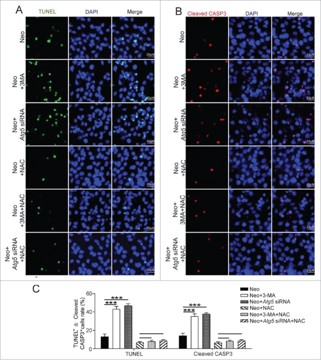 Antioxidant treatment promotes the survival of HEI-OC-1 cells after neomycin injury. (A) TUNEL and DAPI double staining and (B) cleaved-CASP3 and DAPI double staining showed the number of apoptotic HEI-OC-1 cells after the different treatments, n = 4. (C) Quantification of the numbers of TUNEL and DAPI double-positive, as well as cleaved-CASP3 and DAPI double-positive cells in (A and B), respectively. The apoptotic cells were significantly decreased after pretreatment with NAC. For flow cytometry quantification experiments, the values for the normal controls were set to 1. For all experiments, * P