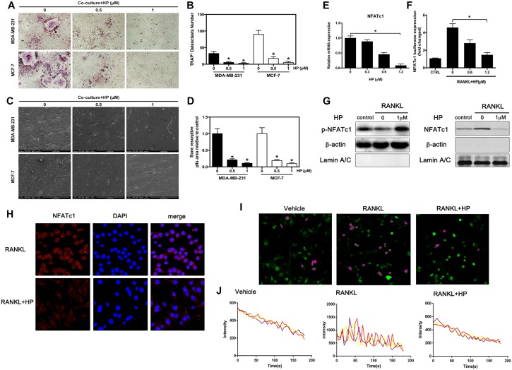 Hypericin inhibits breast cancer-induced osteoclast differentiation and function via suppression of the NFATc1 signaling pathway and attenuation of Ca 2+ oscillation in osteoclasts ( A ) RAW264.7 cells (3 × 10 3 cells/well) were incubated in the presence of MCF-7 or MDA-MB-231 cells for 24 h, exposed to HP (1 μmol/L) for 5 days, and finally stained for measurement of TRAP expression. ( B ) Multinucleated osteoclasts ( > 3 nuclei) in co-cultures were counted. Columns represent the mean results of experiments carried out in triplicate, whereas bars represent the SD. ( C ) HP-inhibited osteoclast bone resorption induced by tumor cells. RAW264.7 cells (3 × 10 3 cells/well) were seeded into bovine bone slices in the presence of MCF-7 or MDA-MB-231 cells for 24 h, and treated with HP (1 μmol/L) for 5 days. After 5 days of incubation, images were obtained using a scanning electron microscope (SEM). Images of bone resorption pits are shown. ( D ) Resorption pit areas were measured using ImageJ software. Columns represent the mean results of experiments carried out in triplicate, whereas bars represent the SD. ( E ) RAW264.7 cells were incubated in serum-free media containing the indicated concentrations of HP and RANKL for 24 h. The cells were lysed, and total RNA was subjected to RT-PCR for determination of NFATc1 gene expression. Graphs indicate the relative intensity of NFATc1 compared to that of GAPDH. ( F ) RAW264.7 cells that were stably transfected with a NFATc1 luciferase reporter construct were pretreated with the indicated concentrations of HP for 1 h and then incubated in the absence or presence of RANKL for 12 h. Luciferase activity was then determined using the Promega luciferase assay system. ( G ) RANKL-induced NFATc1 translocation to the nucleus was assessed by western blotting. RAW264.7 cells (1 × 10 6 cells/well) were pretreated with the indicated concentrations of HP for 2 h and then stimulated with RANKL (50 ng/mL) or were untreated (controls) for 15 min. Cell nuclear extracts were prepared and subjected to western blotting using anti-NFATc1 and LaminA/C. Cell cytosol extracts were prepared and subjected to western blotting using anti-phospho-NFATc1 and actin. ( H ) Effects of HP on nuclear translocation of NFATc1 in RAW264.7 cells. Cells were treated with RANKL for 72 h in the presence and absence of HP (1 mmol/L) and stained with anti-NFATc1 antibody to investigate NFATc1 nuclear translocation (left panel). Nuclei were stained with DAPI (middle panel). Merged images of NFATc1 and the nuclei are shown in the right panel. ( I ) HP reduces intracellular Ca 2+ levels and calcium influx. RAW264.7 cells (3 × 10 3 cells/well) were incubated with RANKL (100 ng/mL) in the presence or absence of HP (1 μM) for 72 h. For Ca 2+ measurement, cells were incubated with Fluo-4 AM and 0.05% pluronic F-127 (Invitrogen) in HBSS supplemented with 1% FCS and 1 mM probenecid (assay buffer) for 30 min followed by confocal analysis. Representative fluo-4 fluorescent images of the RAW264.7 cells from different treatment groups are shown. Pseudo-color-labeled (purple) area represents the cells that are actively undergoing fluorescence ratio changes. ( J ) The relative intracellular Ca 2+ levels in individual cells were monitored for 5 min at 5-second intervals using the fluorescence intensity of Fluo-4 at 200× magnification. Cells with at least two oscillations were counted as oscillating cells. A minimum of 40 cells were monitored in triplicate wells. The average amplitude of Ca 2+ oscillations in each cell was calculated using the TuneR and SeeWave packages for the R programming language. Representative traces of three randomly chosen BMMs were recorded in different treatment groups. The fluorescence ratio change was recorded every 5 s for 300 s.