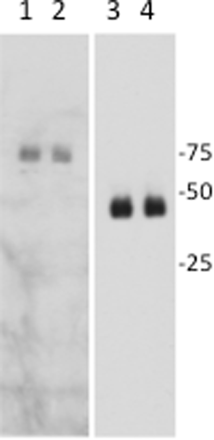 Dynein complex protein levels in wild type and H304R/+ brain tissue. Western blots of brain tissue high speed supernatant from wild-type (lanes 1 and 3) and H304R/+ (lanes 2 and 4) mice were probed for the dynein intermediate chain (lanes 1 and 2) or glyceraldehyde-3-phosphate dehydrogenase (lanes 3 and 4, loading control). The data were statistically compared between wild-type and H304R/+ using the Students t- test (two-tailed distribution, p = 0.23).