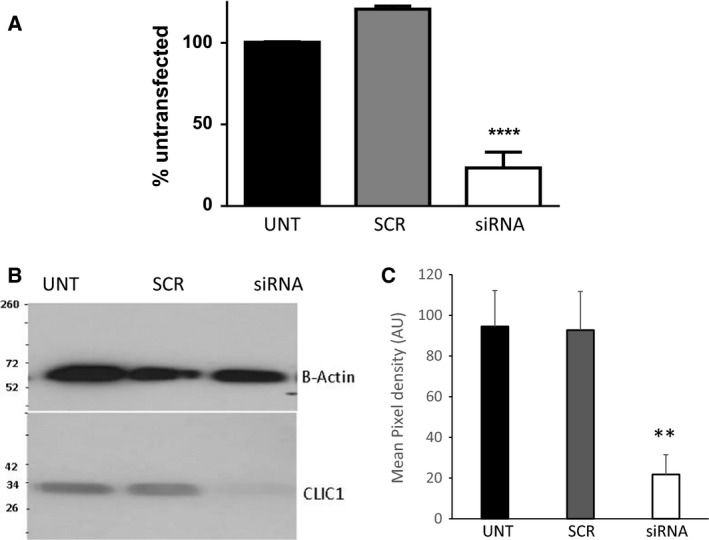 Transfection of si RNA specifically targeted against CLIC 1 significantly reduces both mRNA and protein expressions of CLIC 1 in cultured hBEC cells . Forty‐eight hours posttransfection of CLIC 1‐targeted si RNA (1 nmol/L) both mRNA (duplicate n = 3) (A) and protein (B and C) expression of CLIC 1 was reduced in cultured hBEC cells (B is a representative image of n = 6, **** denotes P