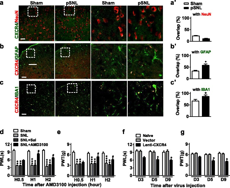 CXCR4 modulates neuropathic pain. a – c CXCR4 immunofluorescent co-staining with NeuN (a neuron marker) ( a , a′ ), GFAP (an astrocyte marker) ( b , b′ ) or IBA1 (a microglial marker) ( c , c′ ) in the lumbar segment of the spinal cord at 7 days after pSNL surgery. * p