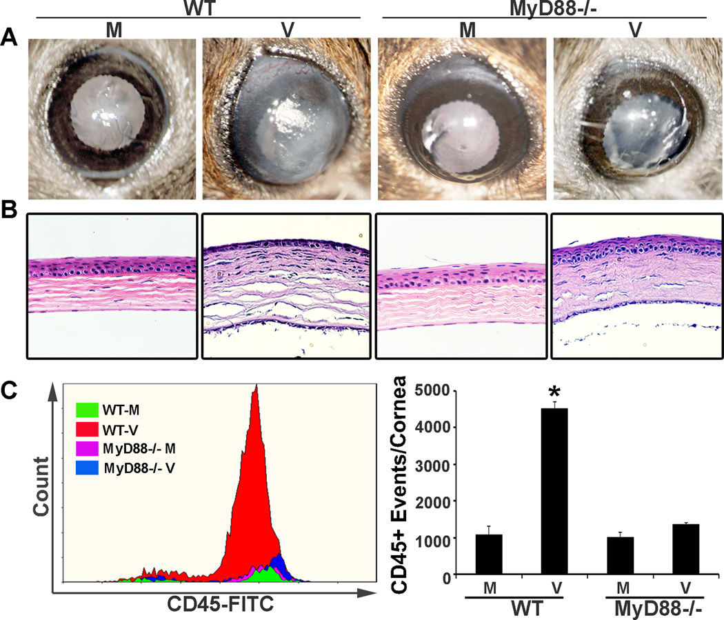 MyD88 −/− keratitis after HAdV-D37 infection. The corneas of WT C57BL/6j and MyD88 −/− mice on a C57BL/6j background were injected intrastromally with 1 µl of 10 5 TCID 50 HAdV-D37 or virus-free dialysis buffer control. Representative clinical photographs ( A ) and histology with H E staining ( B ), both at 4 dpi, show central corneal opacity and stromal infiltration, respectively, in infected WT corneas as compared to MyD88 −/− corneas. Flow cytometry ( C ) performed 4 dpi for CD45 + cell infiltration shows significantly more CD45 + events in infected WT than in similarly infected MyD88 −/− corneas (*p