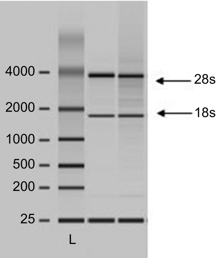 A representative image of the total RNA isolated from whole blood collected in PAX tube and evaluated using the Agilent 2100 Bioanalyzer. The gel electrophoresis showed the ratio of the ribosomal RNA bands of 2 : 1 for 28S and 18S, respectively. L, ladder.