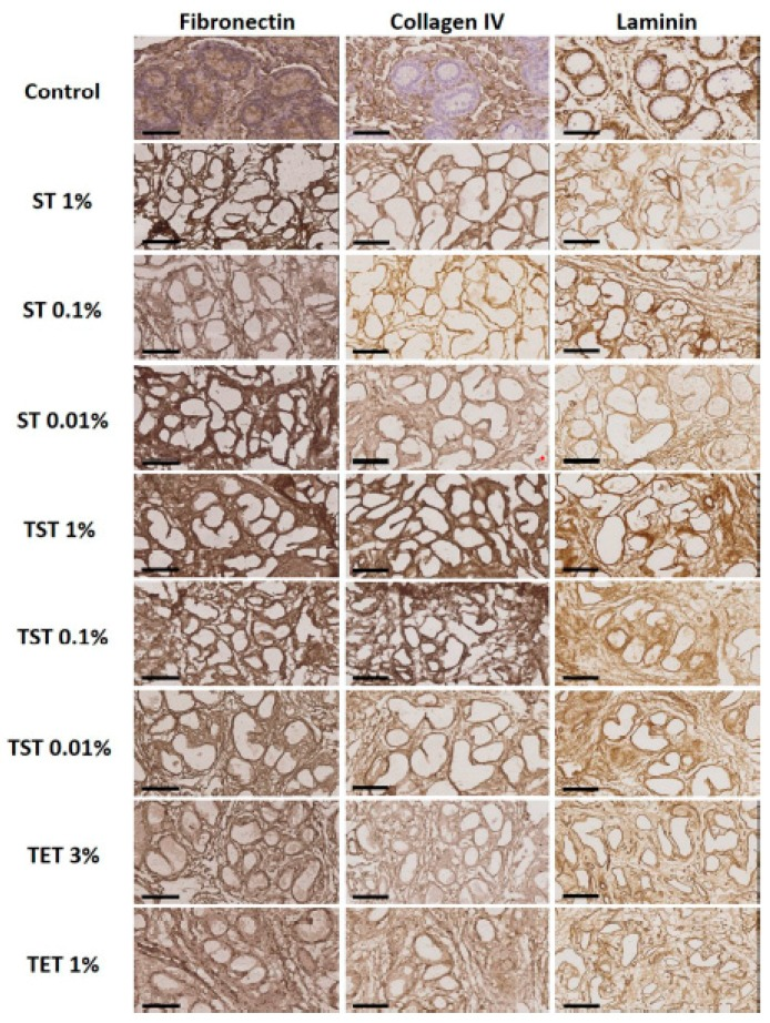 Immunohistochemical analyses of native tissue and DT. Fibronectin, collagen IV and laminin were preserved in tissue decellularized with all protocols in all conditions. Scale bar = 70 µm.