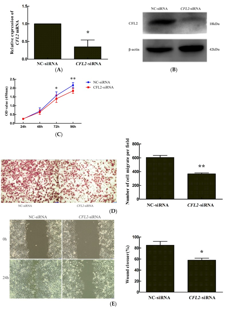 CFL2 inhibits the proliferation and migration of MGC803 cells. ( A ) Quantitative reverse transcription polymerase chain reaction (qRT-PCR) and ( B ) Western blotting were used to detect CFL2 mRNA and protein expression in MGC803 cells after transfecting with CFL2 -siRNA or NC-siRNA. The effect of CFL2 knockdown on the proliferation and migration of MGC803 cells was examined by ( C ) CCK8, ( D ) transwell, and ( E ) wound healing assays, respectively. ( D , E ) left, magnifcation, ×100. Data are from three independent experiments. * p