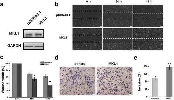 Overexpression MKL1 promoted cell migration and invasion in HeLa cells. a HeLa cells were transfected with pMKL1 or pCDNA3.1. The MKL1 expression level was determined by western blot at 24 h and 48 h after transfection. pCDNA3.1 serves as the negative control and GAPDH serves as the loading control. b The effect of MKL1 overexpression on cell migration was determined by wound healing assay. c Quantification of the wound healing assay. d The effect of MKL1 overexpression on cell invasion was determined in a Boyden chamber assay. e The number of cells on the underside of the filter was determined and significantly ( P
