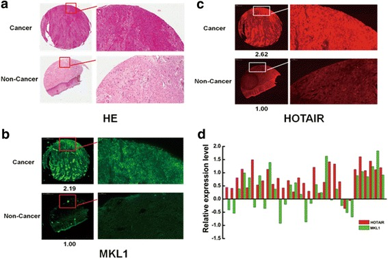 High level of MKL1 significantly correlate with HOTAIR expression in Cervical cancer patient. a Hematoxylin and eosin (HE)-stained cervical cancer tissues and adjacent normal tissues. b HOTAIR stained by in situ hybridization; high level of HOTAIR expression in cervical cancer tissues compared with adjacent normal tissues. c The expression of MKL1 was detected in cervical cancer tissues and adjacent normal tissues by IHC. The MKL1 expression was enhanced in cervical cancer tissues compared with adjacent normal tissues. The images were acquired by Pannoramic MIDI with a 20 × microscope objective. d The correlation between the expression of HOTAIR and MKL1 in cervical cancer tissues from 31 patients was shown. Red represented the RNA expression of HOTAIR. And Green represented MKL1 protein expression level