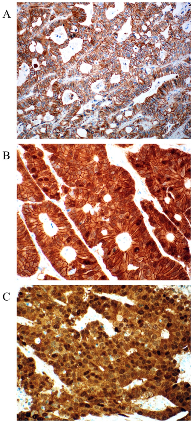 Representative examples of <t>β-catenin</t> expression in colorectal liver metastasis. (A) Only membranous staining was observed (score 0 for cytoplasm and nucleus). (B) Cytoplasmic expression of β-catenin with some positive nuclei (score 1 for cytoplasm and nuclei). (C) Diffuse and strong cytoplasmic and nuclear staining (score 1 for cytoplasm, and score 2 for nuclei). Magnification, ×200.