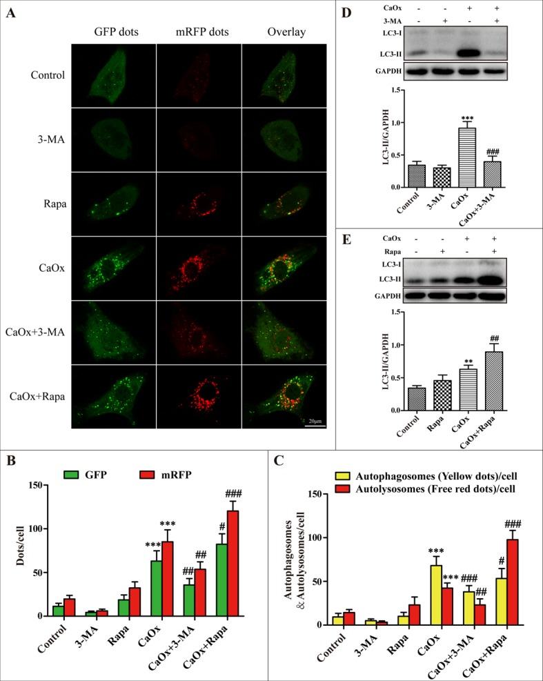Effects of 3-methyladenine and rapamycin on CaOx crystal-induced autophagy ( A ) HK-2 cells were transduced with Ad-mRFP-GFP-LC3 and then treated with vehicle or CaOx crystals (4 mM), with or without 3-methyladenine (3-MA, 5 mM) or rapamycin (Rapa, 10 μM) for 24 h. Under confocal microscopy, GFP dots displayed as green fluorescence while mRFP dots are red. In the merged images, autophagosomes and autolysosomes are labeled with yellow and red dots, respectively; scale bar: 20 μm. ( B ) Mean numbers of GFP and mRFP dots per cell. ( C ) Mean numbers of autophagosomes and autolysosomes per cell. ( D and E ) Representative immunoblot and quantification analysis of LC3-II as assayed after exposure to vehicle or CaOx crystals (4 mM) in the absence or presence of 3-methyladenine (3-MA, 5 mM) or rapamycin (Rapa, 10 μM) for 24 h. Data are presented as the mean ± SD from three experiments. ** P