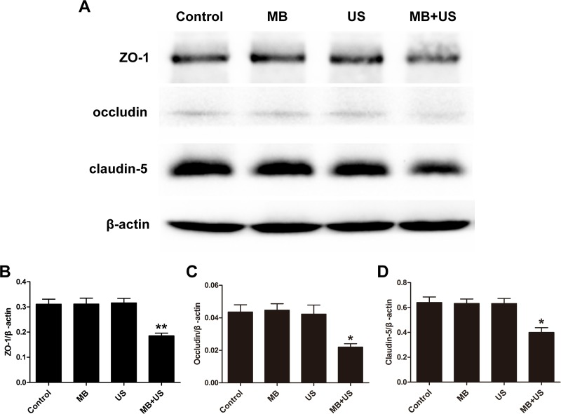 Representative blots ( A ) and relative quantitative analysis ( B , C , D ) of TJ related proteins ZO-1, occludin and claudin-5 expression in each group. Data were shown as the mean ± SEM, * P