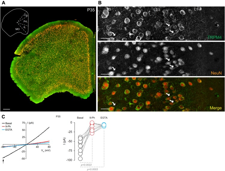 Neuronal expression of TRPM4 in mouse prefrontal cortex (PFC). (A) Panoramic view of the frontal cortex showing double immunofluorescence labeling for TRPM4 (green) and NeuN (red) in a coronal mouse brain section at P35. The inset shows a coronal map of this area. (B) Confocal images of layers 1 and 2/3 of mPFC showing the expression of TRPM4 (top), NeuN (middle), and the merge of both signals (bottom) showing the expression in the soma and neurites (arrows). Scale bar: A = 300 μm; B = 40 μm. (C) Representative I/V ramps (–80 to 80 mV, 0.16 mV/ms) recorded in the soma of pyramidal neurons from layer 2/3 at mPFC. Black traces represent the basal current, red traces represent the effect of 10 μM 9-Ph (whole bath perfusion), and blue traces represent intracellular EGTA (10 mM). The right panel shows the quantification of the current at –80 mV (arrow) ( n = 8). All experiments were performed in the presence of glutamatergic (CNQX, AP5) and GABAergic blockers (Picrotoxin).